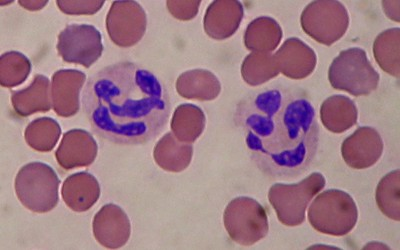 leukocytosis