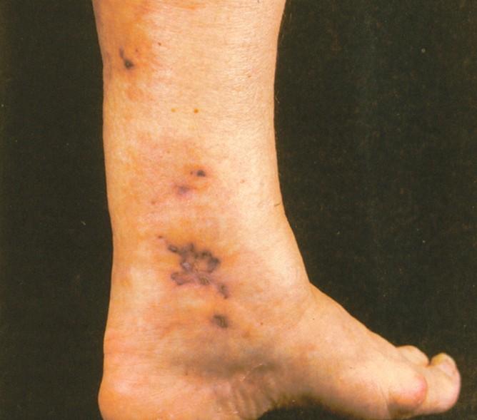 polyarteritis nodosa pictures 2