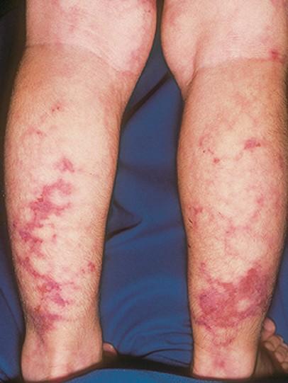 polyarteritis nodosa pictures 3