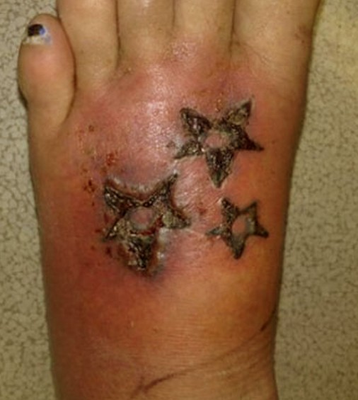 tattoo infection pictures signs symptoms causes