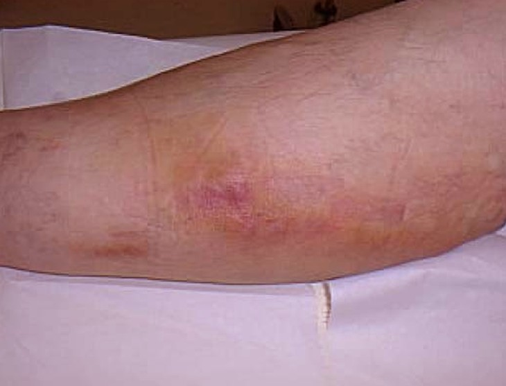 thrombophlebitis pictures 3
