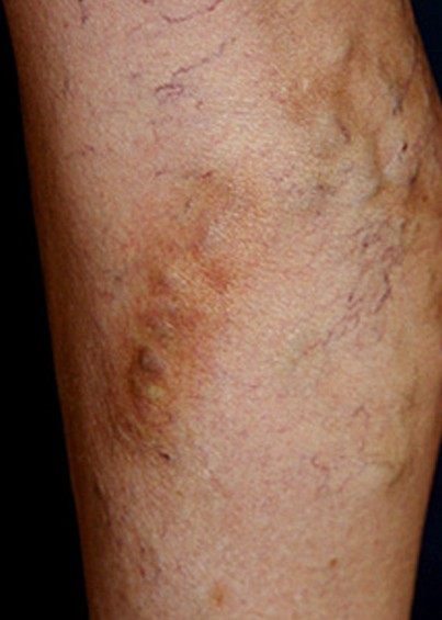 thrombophlebitis pictures
