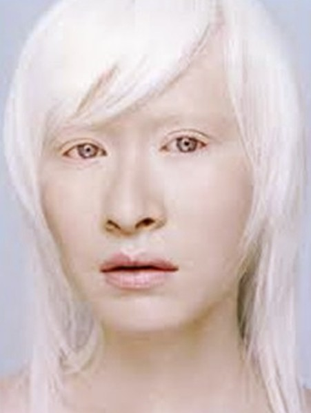 Albinism Pictures Definition Symptoms Treatment Causes