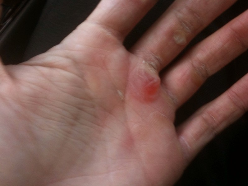 Blisters - Topic Overview - WebMD