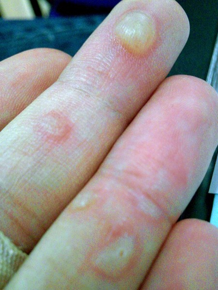 eczema hands blisters - photo #29