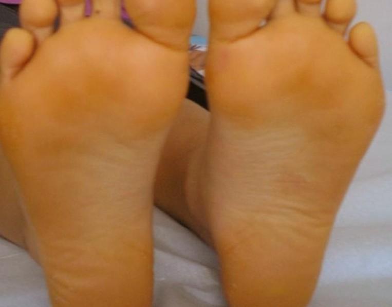 Carotinemie (carotinemia, oranje verkleuring van de huid)