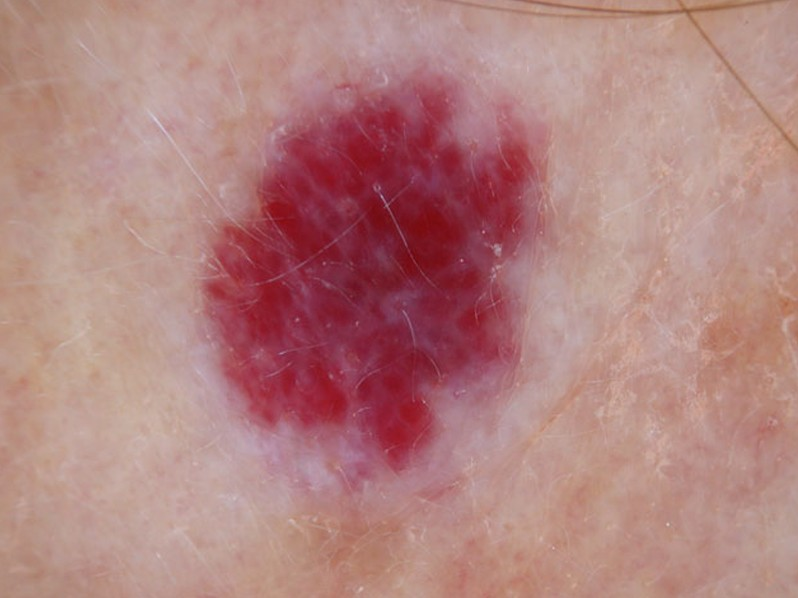 cherry angioma in adults - removal, pictures, treatment, causes, Skeleton