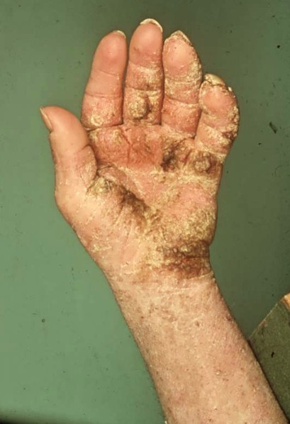 crusted scabies pictures 3
