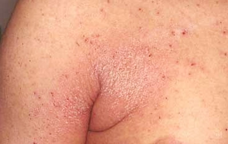 crusted scabies pictures 4