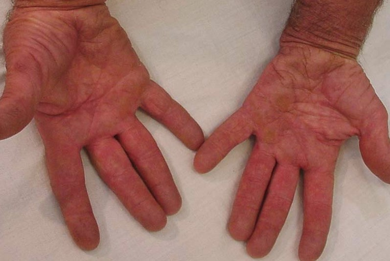 crusted scabies pictures 5