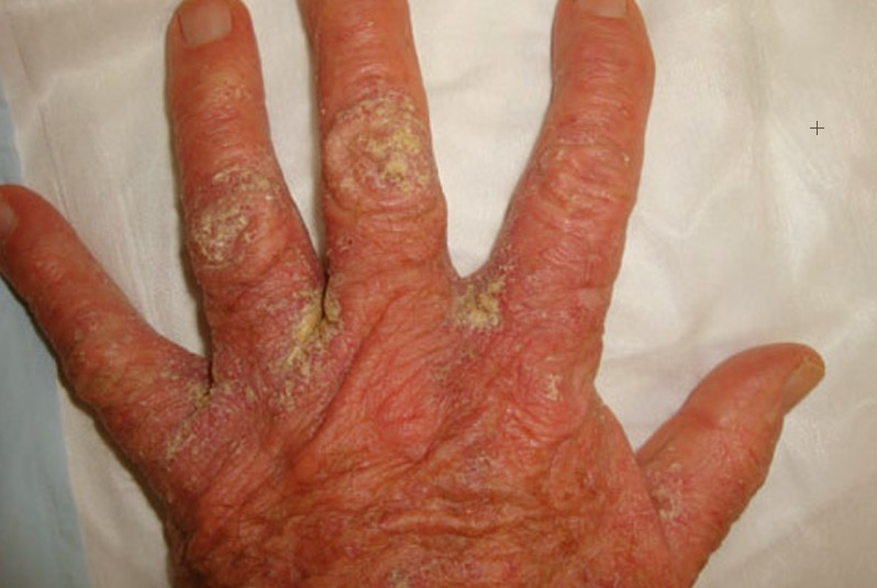crusted scabies pictures