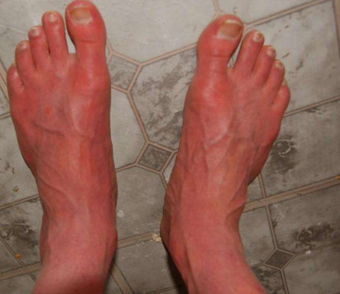 Erythromelalgia Pictures Symptoms Diagnosis Treatment