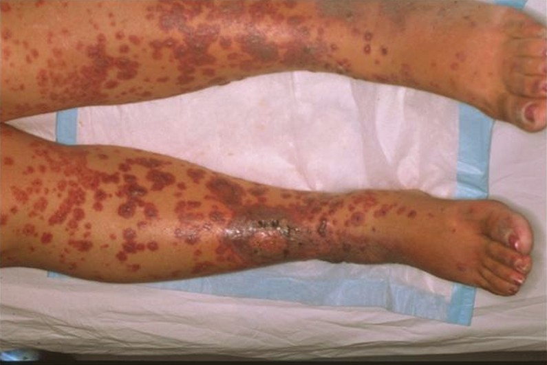 leukocytoclastic vasculitis 4