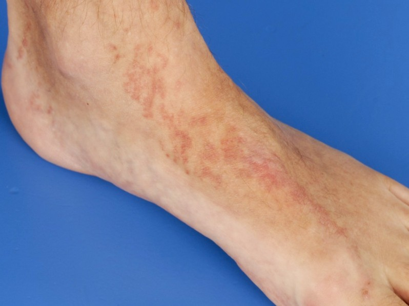 topical steroids for hives