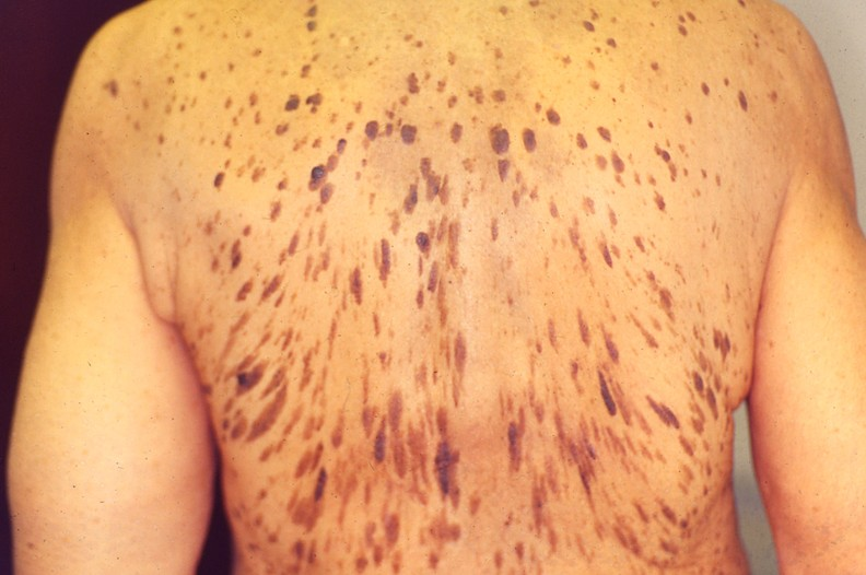 pagets disease of the breast pictures  56389