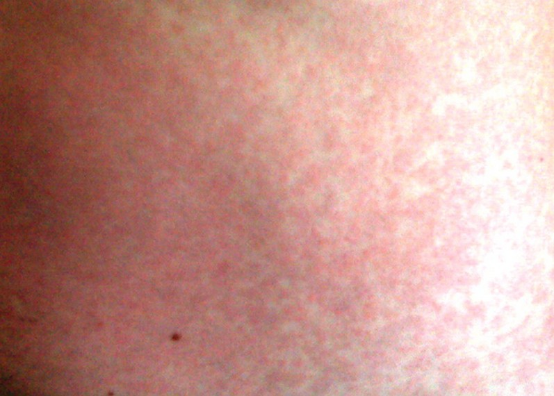 maculopapular rash 7