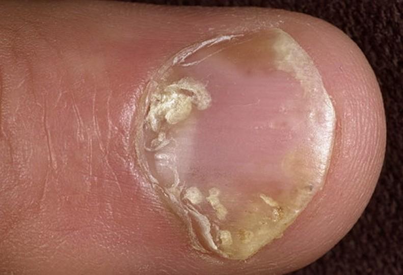 nail psoriasis 2