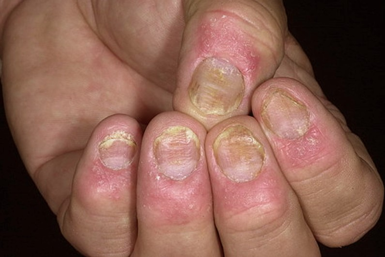 Nail Psoriasis Treatment, Home Remedies, Pictures & Facts