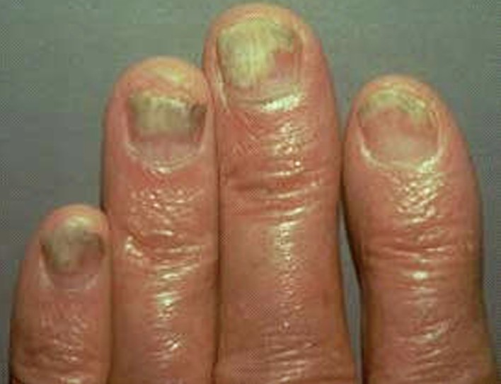 Nail Psoriasis | The Psoriasis and Psoriatic Arthritis ...