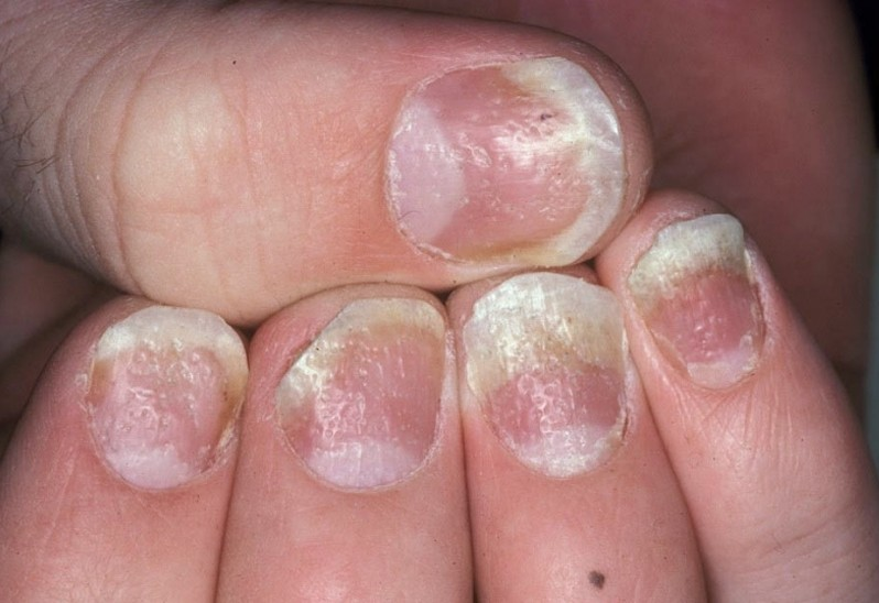 Medical News Today: Nail Psoriasis: Symptoms and Treatment