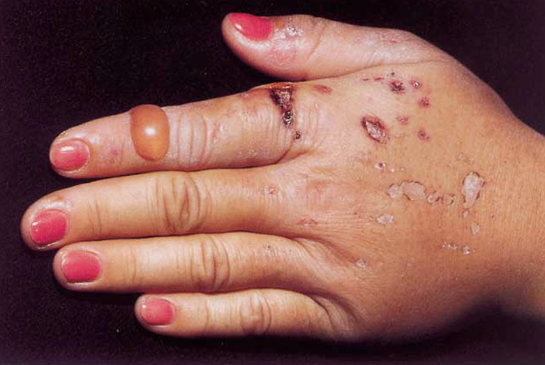 porphyria cutanea tarda 3