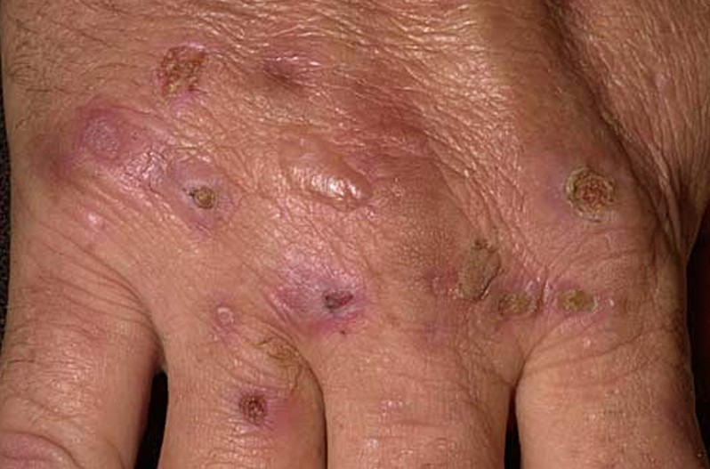 porphyria cutanea tarda 5