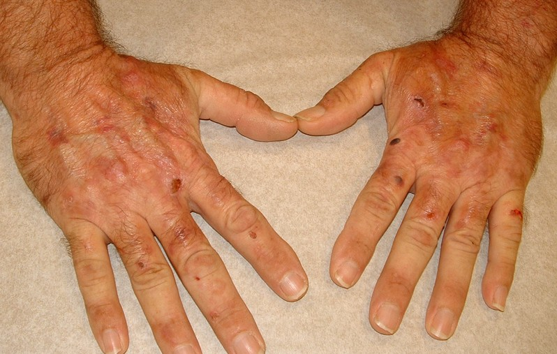 porphyria cutanea tarda 6
