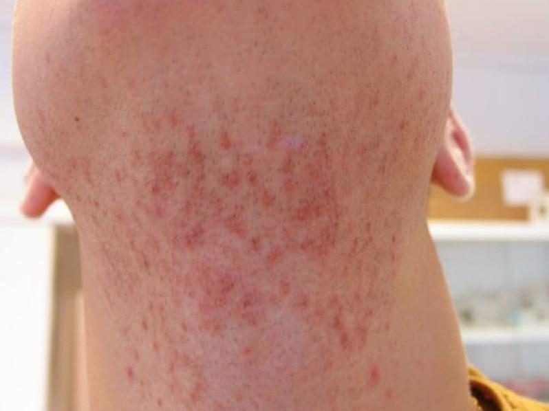 pseudofolliculitis barbae 4