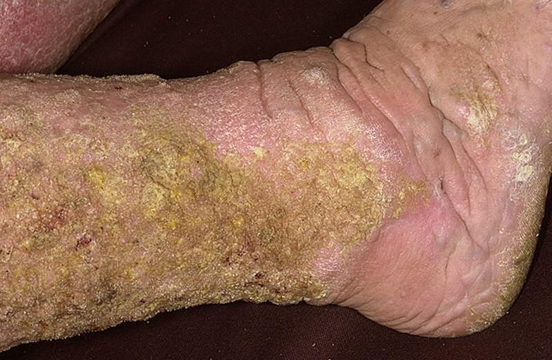 stasis dermatitis 2
