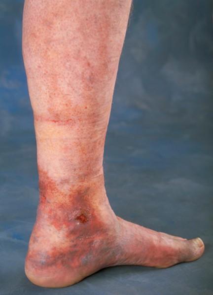 stasis ulcer 3