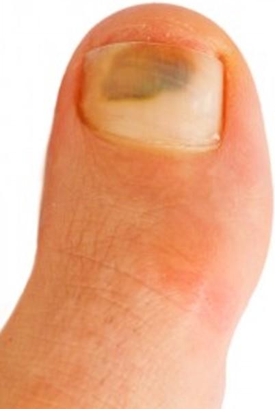 bruised toenail pictures 2