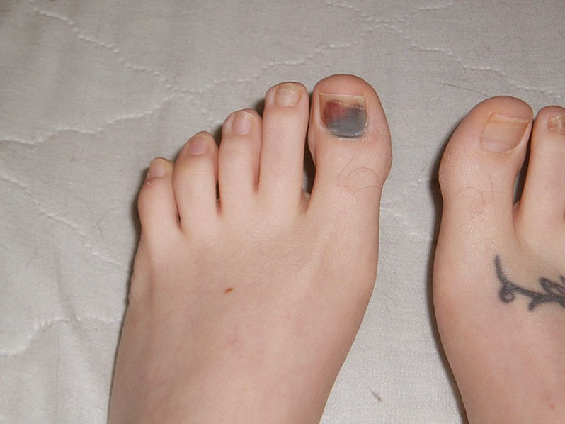 Bruised Toenail - Pictures, Healing time, Causes, Treatment