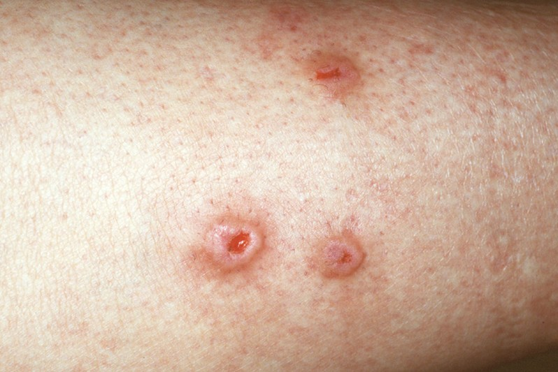 topical steroid cream for shingles