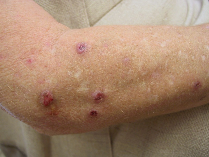 topical steroid for shingles