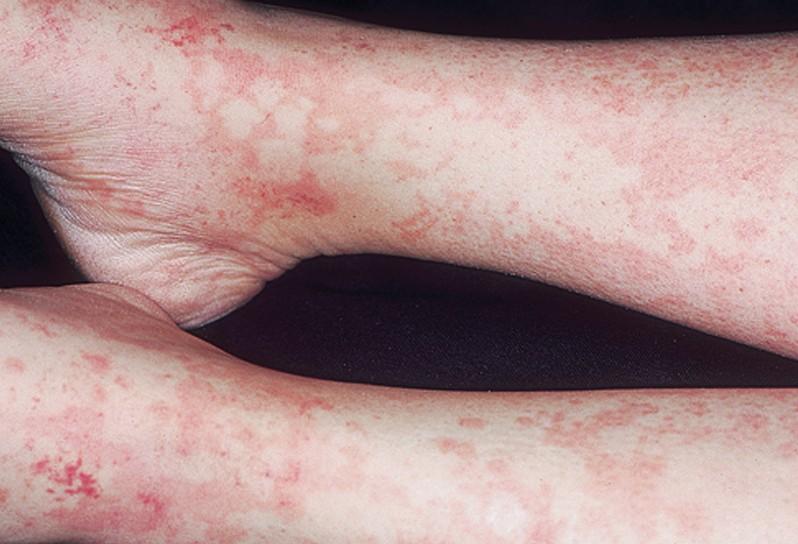serum sickness pictures 7