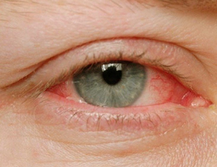 allergic conjunctivitis pictures 2