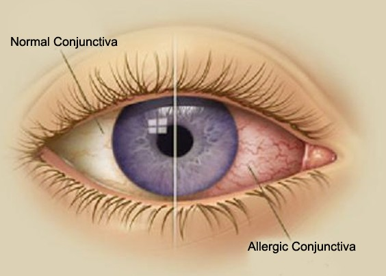 allergic conjunctivitis - pictures, treatment, symptoms, causes, Skeleton