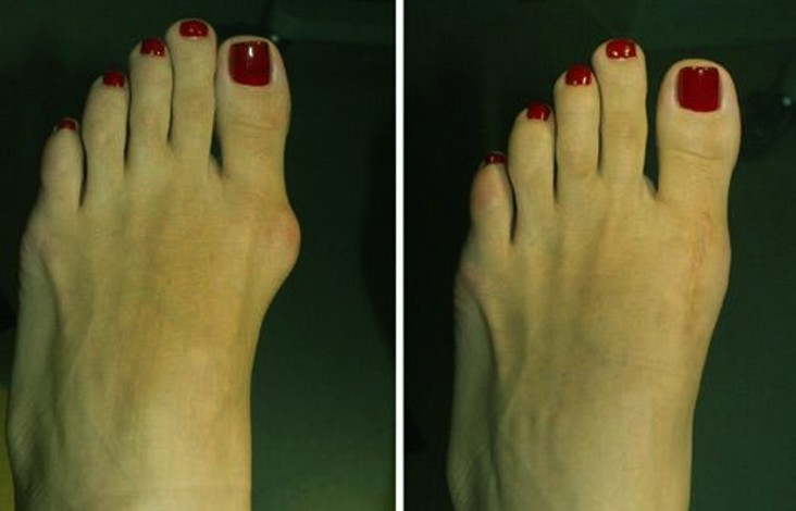 bunion surgery before and after pictures