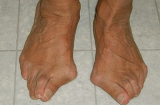 bunion surgery pictures 2