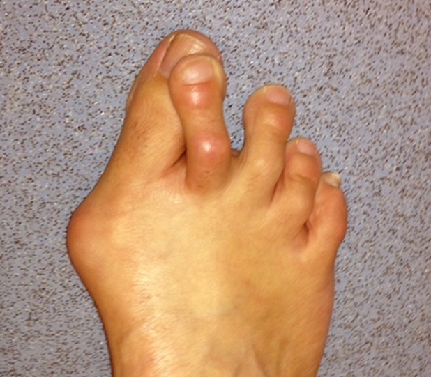 bunion surgery pictures 3