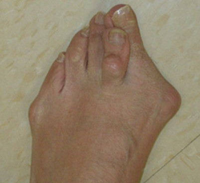 bunion surgery pictures
