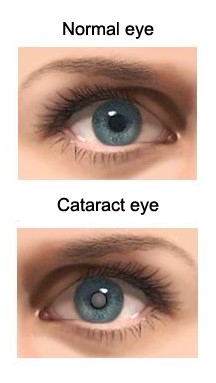 cataracts