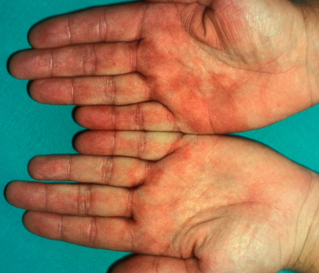 Itchy palms of hands and soles of feet - Scleroderma ...