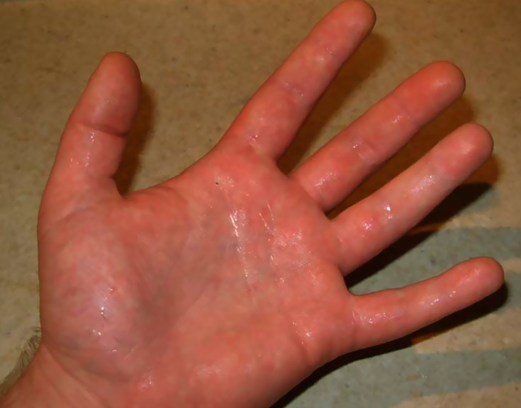 Doctor insights on: Red Blotches On Palms Of Hands - HealthTap