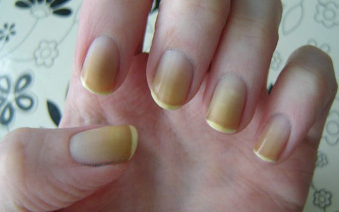 yellow nails pictures