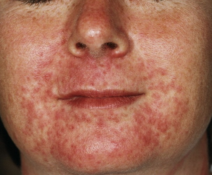 acne around mouth pictures 3
