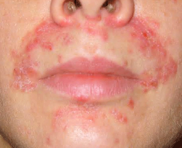 acne around mouth pictures 4