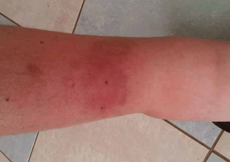 bee sting swelling pictures 4