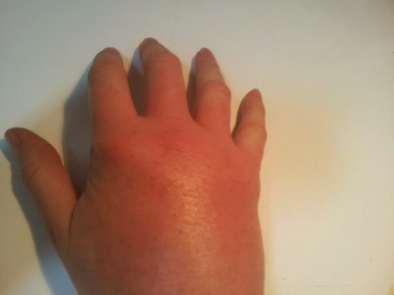 bee sting swelling pictures 5