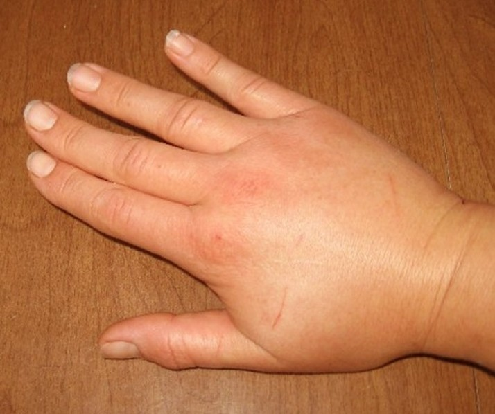bee sting swelling pictures 6